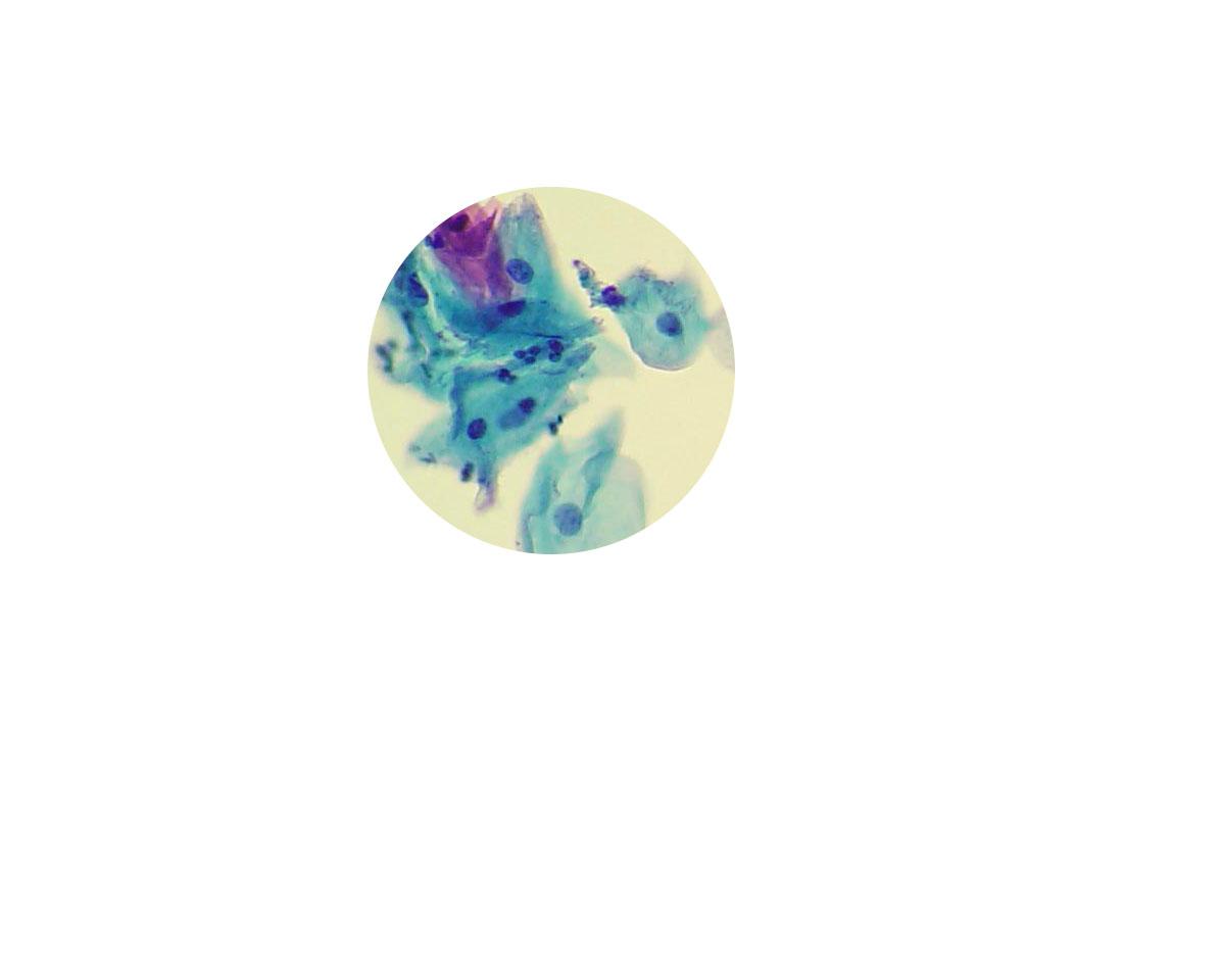 cytocells blueyellowrnd